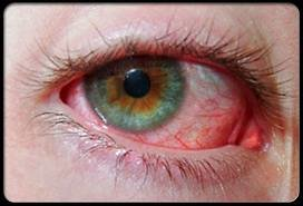 Causes of Red Eye - Symptoms, Reasons and Why You Have Red Eyes