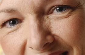Get Rid of Under Eye Wrinkles – Causes, Treatments, Remedies and Prevention