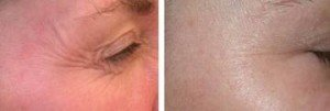 Get Rid of Under Eye Wrinkles – Treatment and Cures Laser Resurfacing