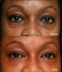 Dark Circles under Eyes Treatment – How to Remove, Cure, Eliminate By Laser, Surgery, Dermal Fillers,Peels and Facials – Facials and Peels to Cure Dark under Eye Circles