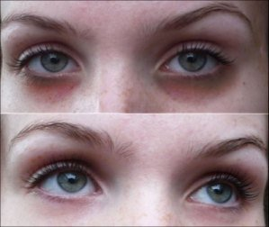 How-to-Cure-Dark-under-Eye-Circles-–-Laser-Treatment-for-Dark-Circles-under-Eyes.jpg