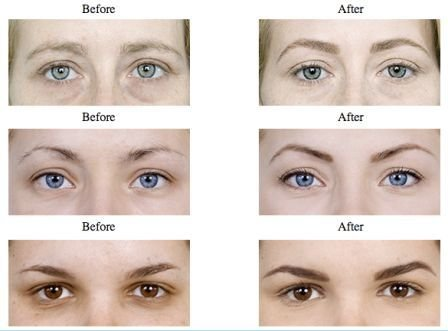 Trim Eyebrows Before and After