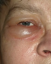 Puffy Eyes Causes - What Is Puffiness under Eye, Prevention and Symptoms