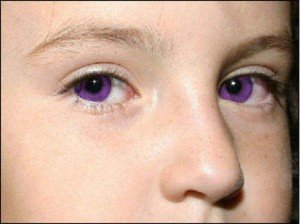 Purple Eyes – Causes, Purple Eye Disease and Makeup Tips