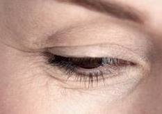 Under Eye Wrinkles - Crow's Feet and Fine Lines
