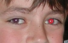 Red Eye Photos - How to Fix Red Eye Pictures