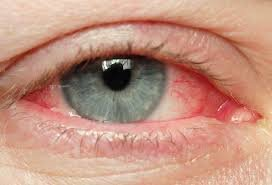 What is Viral Pinkeye or Conjunctivitis