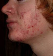 Foods that Cause Acne – Which Foods Cause, Prevent, Cure, Help, and Reduce Acne Breakout on Adults and Teenagers - Acne Breakout