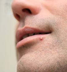 Small Bumps and Small Pimples on Lips - Pimple