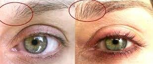 Best Eyebrow Growth Serums and Before and After Photos - BeautyHows