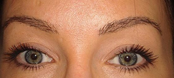 Eyebrow Restoration - Restored Brows