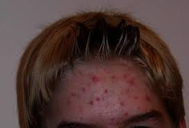 Acne Managment and Treatment
