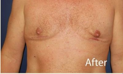 Breast Scar Reduction for Men - After