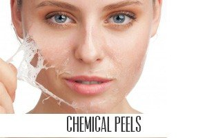 Chemical peels for skin whitening