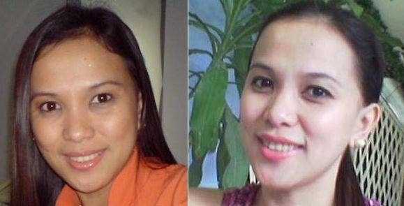 Glutathione Skin Whitening Pills Before and After Looks