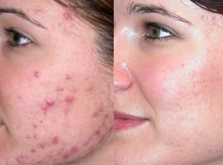 How to Get Rid of Acne Scars - Before and After Looks