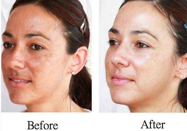 Skin Whitening – Best, Before and After, Asian, Permanent, Japanese and Korean - Before and After Looks