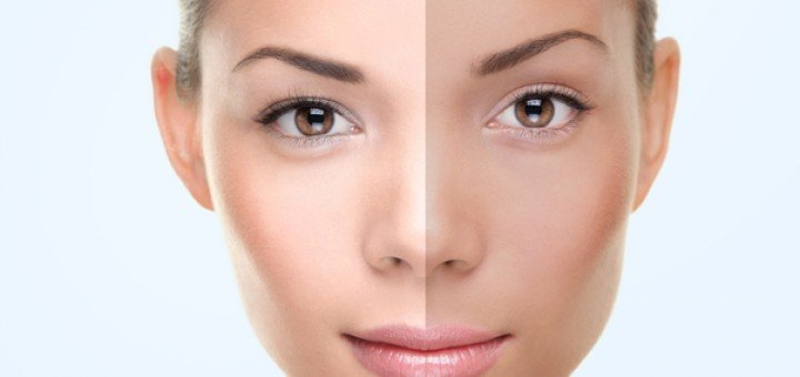 Skin Whitening – Best, Before and After, Asian, Permanent, Japanese and Korean