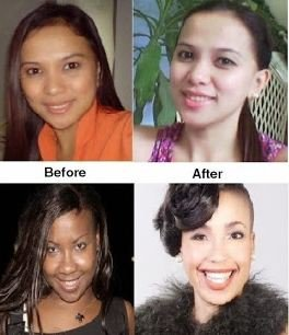 Skin Whitening Forever – Does It Work - Before and After Looks