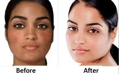 Skin Whitening Pills - Ivory Skin Whitening Pills Results Before and After